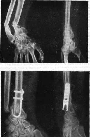Ложные суставы трубчатых костей реферат 7706