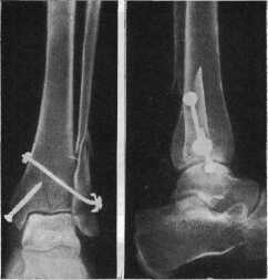 Реферат повреждение голени голеностопного сустава и стопы артрит плечевых суставов