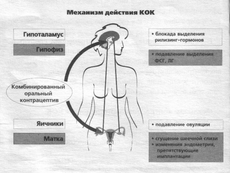 gormonalnoe-podavlenie-spermatogeneza